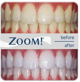 Zoom Teeth Whitening Hilliard OH