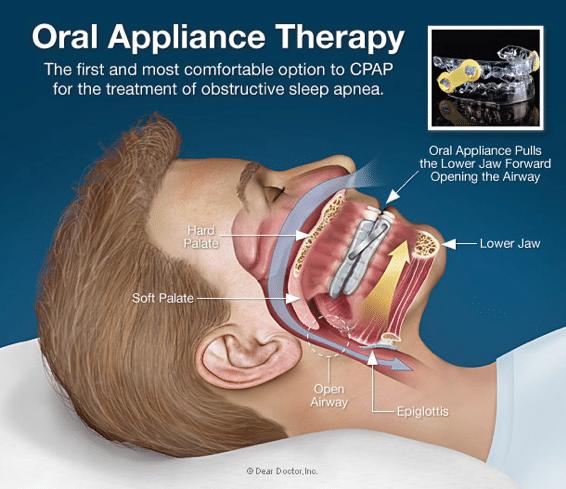 Sleep apnea device