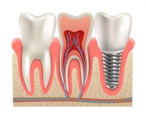 Dental Implants Hilliard
