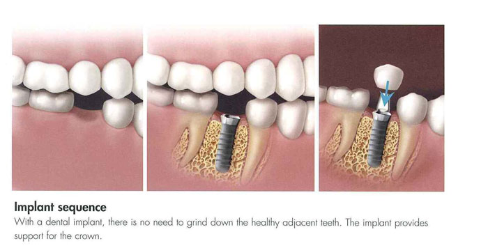 Dental Implants Hilliard OH