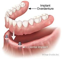 Implant Dentures Hilliard